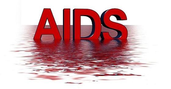 Aids ciekawostki